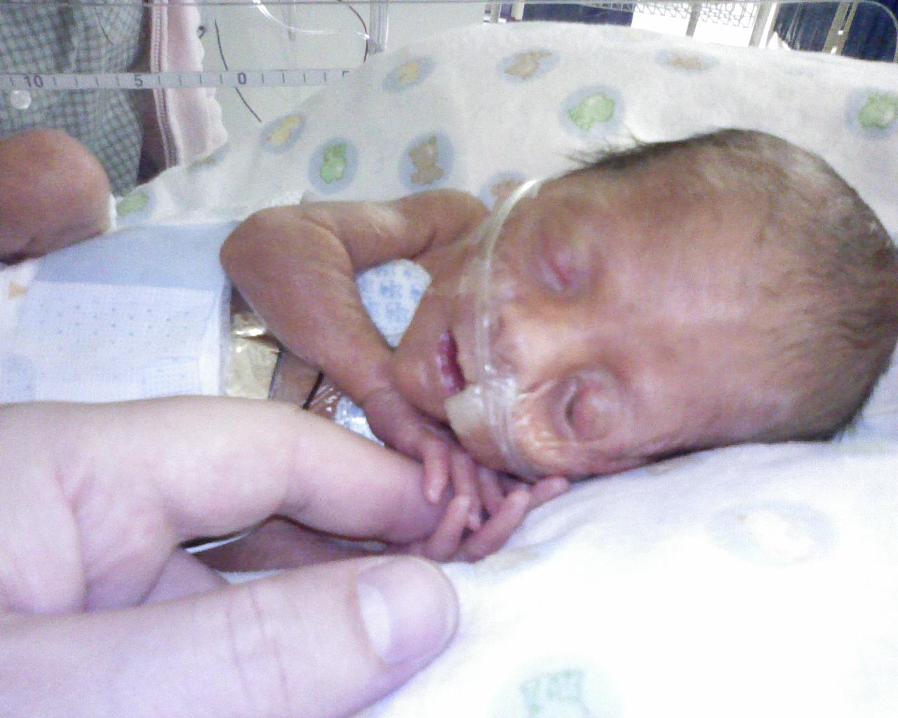Baby Born at 5 Months